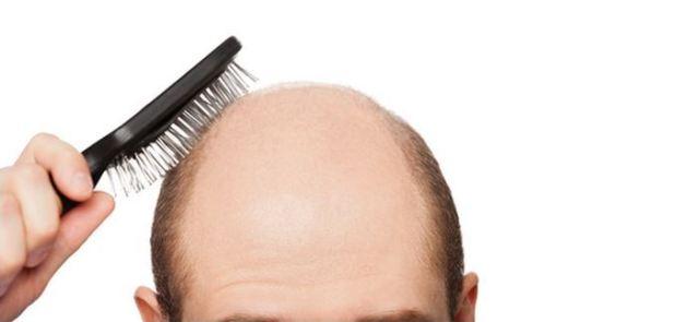 Czy witamina D zapobiega wypadaniu włosów?