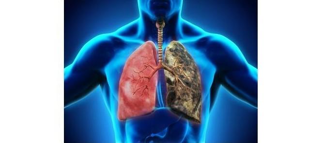 Przestroga dla palaczy - nowotwór płuc może ukrywać się przez dekady!