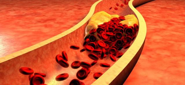 Mity związane z cholesterolem