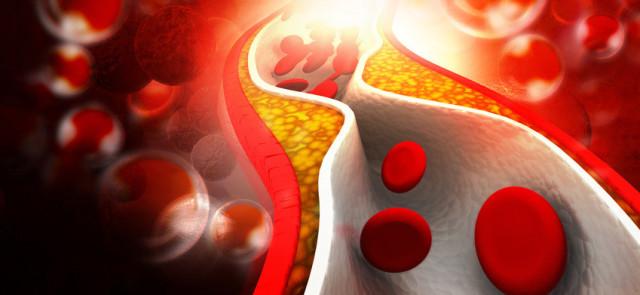 Wpływ sauny na poziom cholesterolu