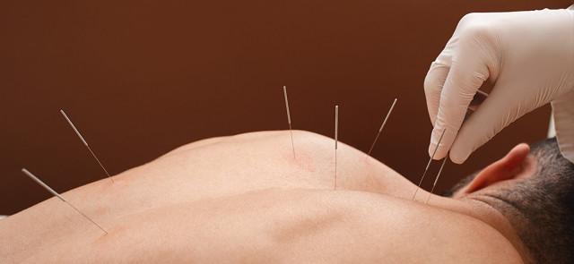 Czy akupunktura może pomóc schudnąć?
