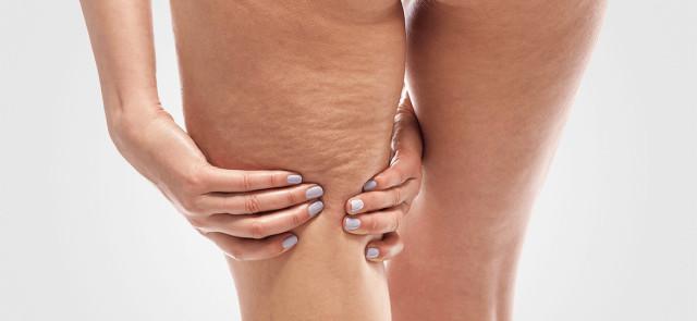 Cellulit od podszewki - dieta a cellulit