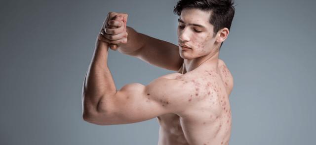 Czy Metanabol może zaszkodzić nastolatkowi? Czy warto brać Metanabol?